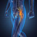 Osteoporose natürlich vorbeugen und ohne Medikamente kontrollieren
